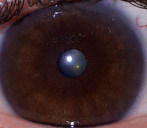 Comprendre l'iridologie, partie 3: l'hématogène pigmentaire